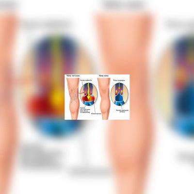 studio medico eur - Insufficienza venosa cronica
