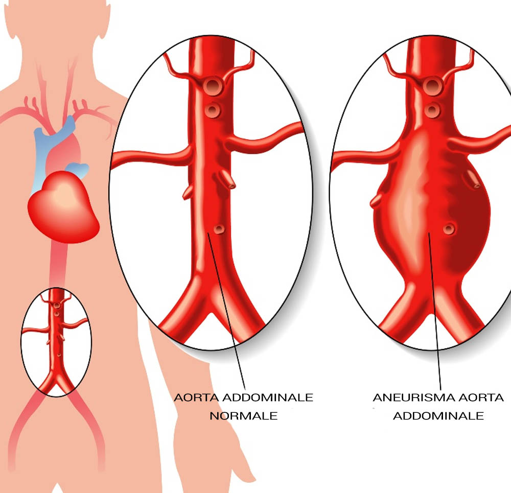 aneurisma aorta addominale
