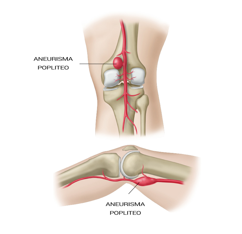 aneurisma arti inferiori