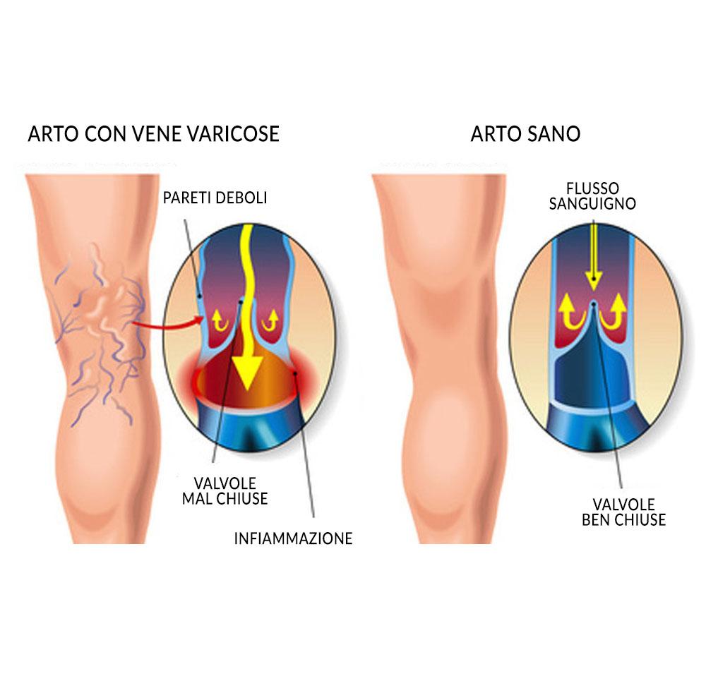 insufficienza venosa cronica - angiologo a roma