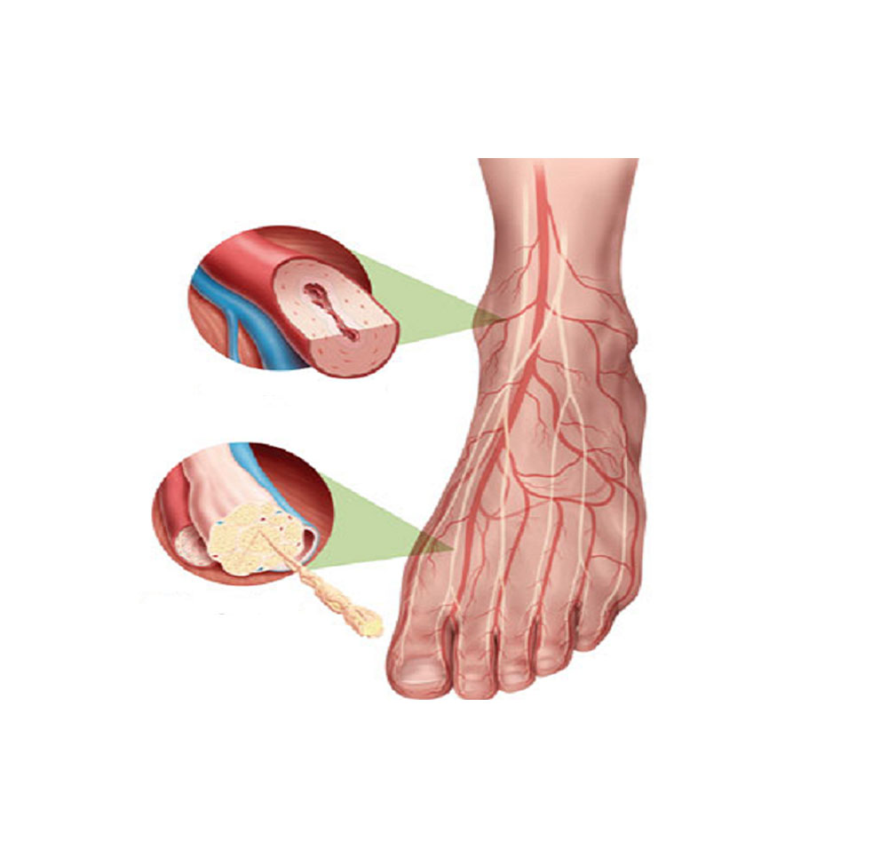 microangiopatia - angiologo a roma